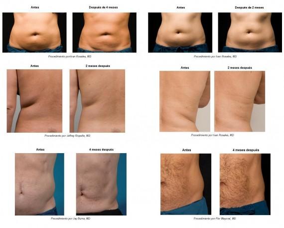 Antes y después de un tratamiento de criolipolisis